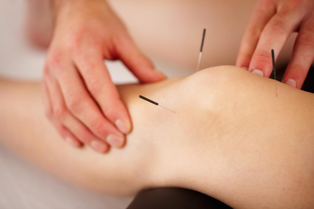 Acupuncture being performed in the knee